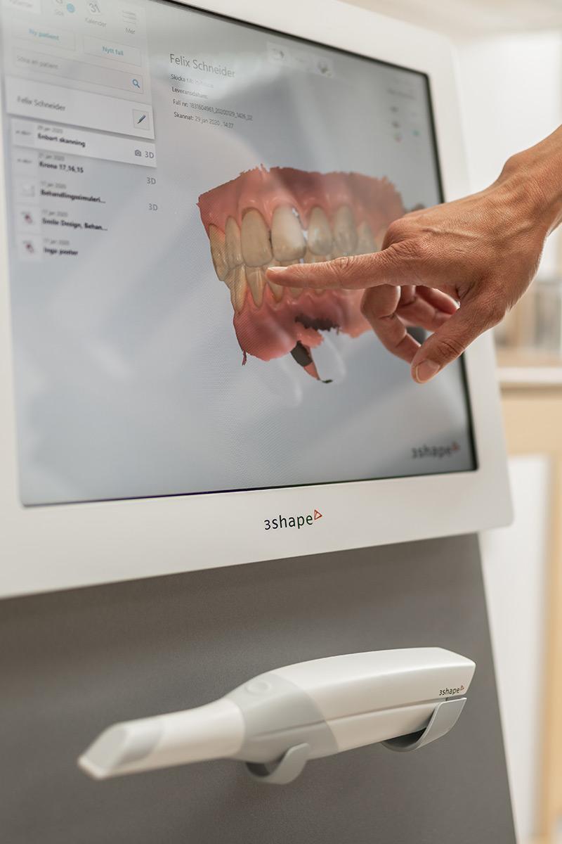 En hand pekar på en datorskärm som visar en 3D-bild på en käke med tänder